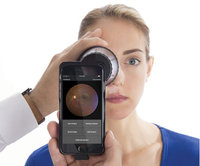 Volk iNview Fundus Camera